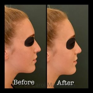 Non-surgical nose job - Before and After