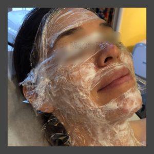Vampire PRP Facial Application
